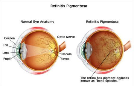 Retinitis Pigmentosa – Causes, Symptoms, Diagnosis, Treatment and Ongoing care - An eye disease in which there is progressive damage to the retina with gradual loss of peripheral vision that eventually leads to significant visual impairment  Read more: http://health.tipsdiscover.com/retinitis-pigmentosa-causes-symptoms-diagnosis-treatment-ongoing-care/#ixzz2ljVD1oRy