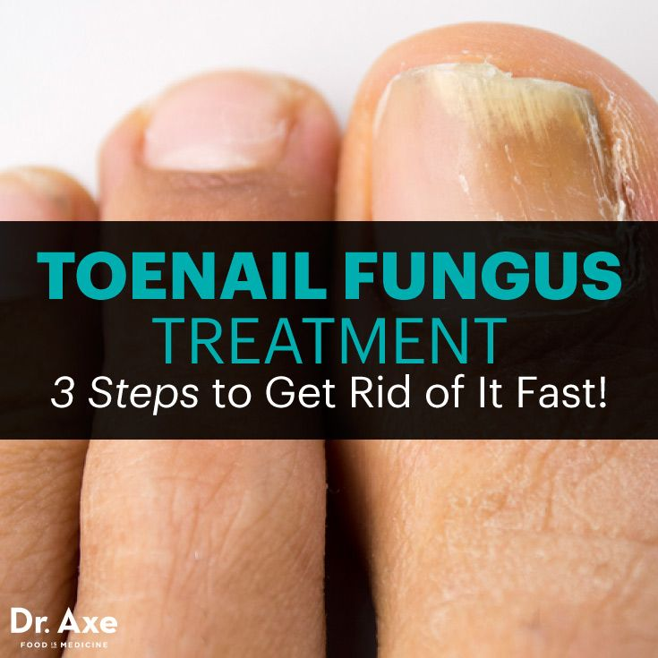 Toenail fungus treatment - Dr. Axe http://www.draxe.com #health #holistic #natural