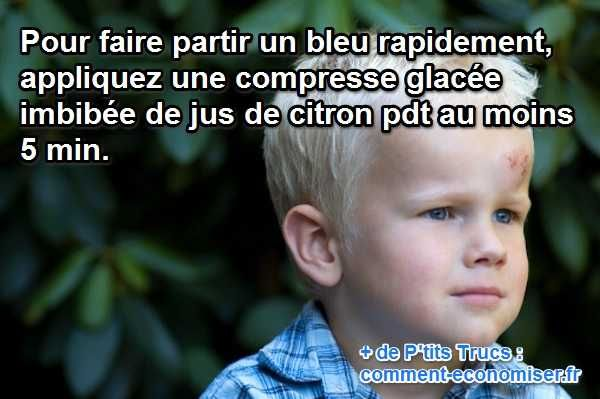 Ce remède va faire partir ce bleu aussi vite qu'il est venu :-)  Découvrez l'astuce ici : http://www.comment-economiser.fr/remede-efficace-pour-faire-partir-partir-un-bleu-rapidement.html?utm_content=bufferd56c7&utm_medium=social&utm_source=pinterest.com&utm_campaign=buffer