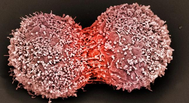 Ojo a esto: la quimioterapia podría ser culpable de la aparición de células cancerígenas http://www.cienciaxplora.com/descubrimientos/quimioterapia-podria-ser-culpable-aparicion-celulas-cancerigenas_2015062200089.html…