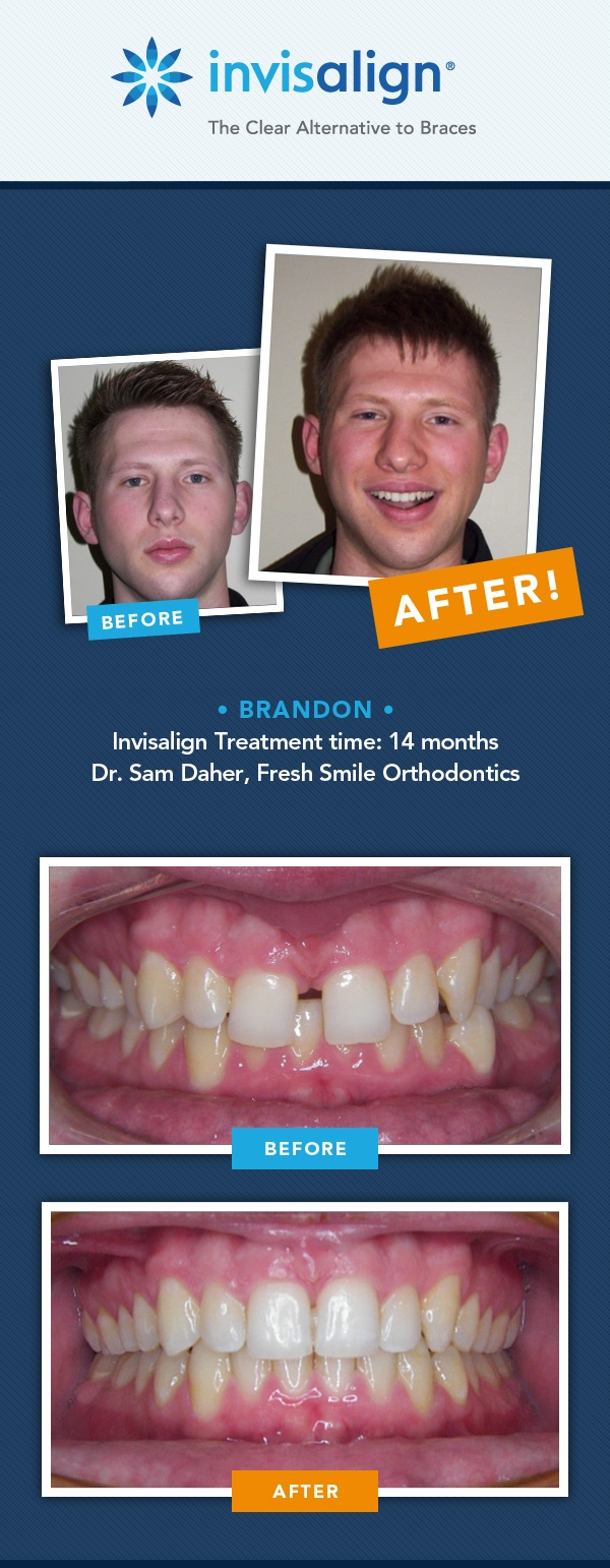 75 best images about invisalign on pinterest katherine heigl robert lowe and 500 in. Black Bedroom Furniture Sets. Home Design Ideas