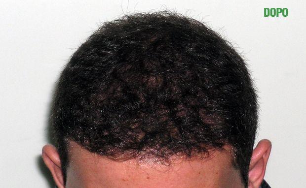 Se è possibile applicare la vitamina A a capelli