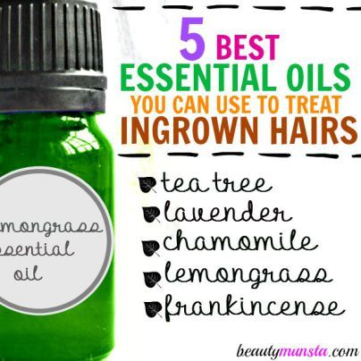 The best way to treat ingrown hairs - use essential oils! Lemongrass essential oil is...