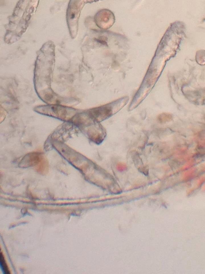 14 Best Mycology Images On Pinterest Fungi Bright Green