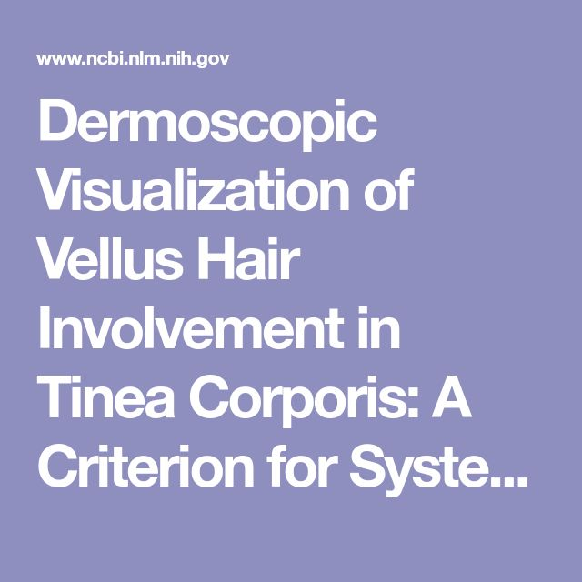 Dermoscopic Visualization of Vellus Hair Involvement in Tinea Corporis: A Criterion for Systemic Antifungal Therapy? - PubMed - NCBI