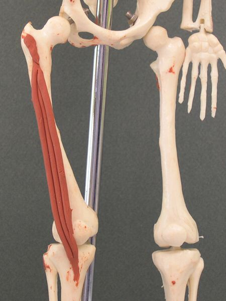 Vastus lateralis : greater trochanter & linea aspera of femur (origin) lateral quadriceps tendon to patella & tibial tuberosity (insertion). Action: extends knee