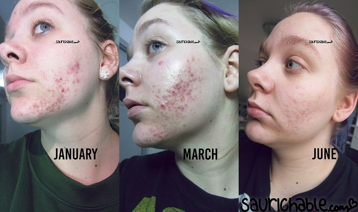 Acne Skincare Routine // 여드름 스킨 케어 루틴