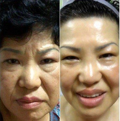 Look at the difference after using the Nuskn Galvanic Spa for just 2 months! This naturally boosts the levels of collagen, elastic and hydration in the skin and doesn't it show! Quote Nuskin Consultant. Quote ID: NZ00015259. When You Sign up as a Distributor or Preferred Customer for Wholesale Prices at http://charm78.nsproducts.com