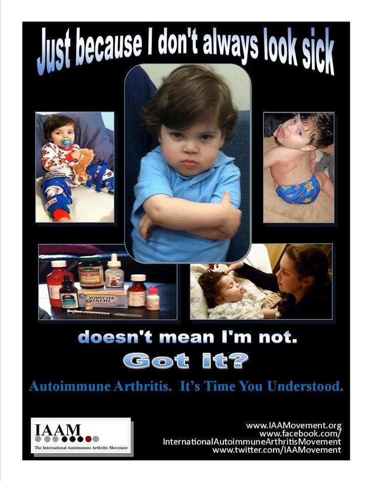 Juvenile Autoimmune Arthritis, Juvenile Rheumatoid Arthritis ...