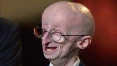 VIDEO: The Triumphant Story of Sam Berns, Progeria and Math