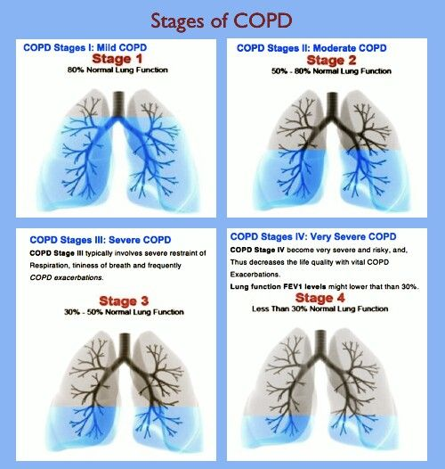 COPD stages. If you or a loved one needs help with COPD, check out curelauncher.com
