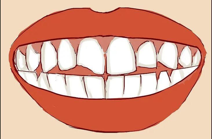 Pin on Teeth straightening