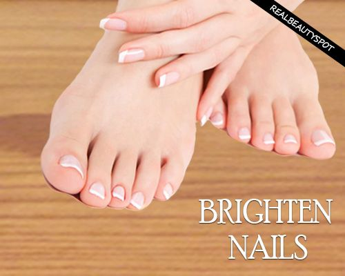 Yellowing of nails is a very common issue nowadays. Tips for brightening nails naturally