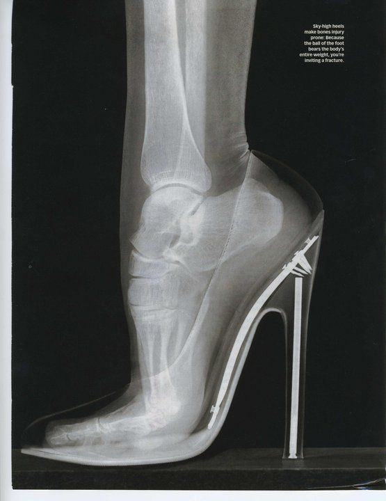 FYI - This is how you look in a traditional high heel. Note the bone structure, or lack thereof. Anyone care to guess how many health benefits this posture has?     Hint: It's between 0 and .... 0UCH, THESE ARE HEELS THAT REQUIRE A CHAUFFEUR AND A VERY GOOD PODIATRIST AND OSTEOPATH IN LATER YEARS!