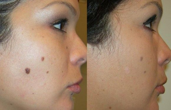 How to Remove Moles? (Home Remedies) How to remove moles. Home remedies for moles. Ways to get rid of moles. Natural treatment for moles removal on arms, face and body.
