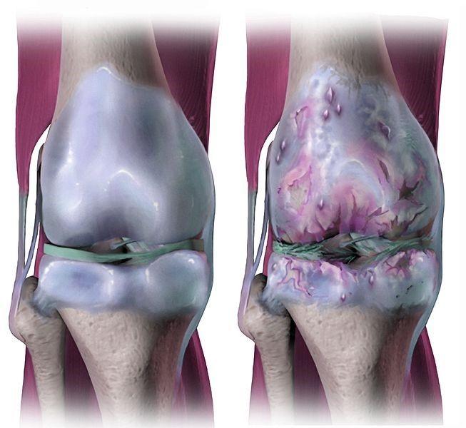 En finir avec les douleurs de l'arthrose