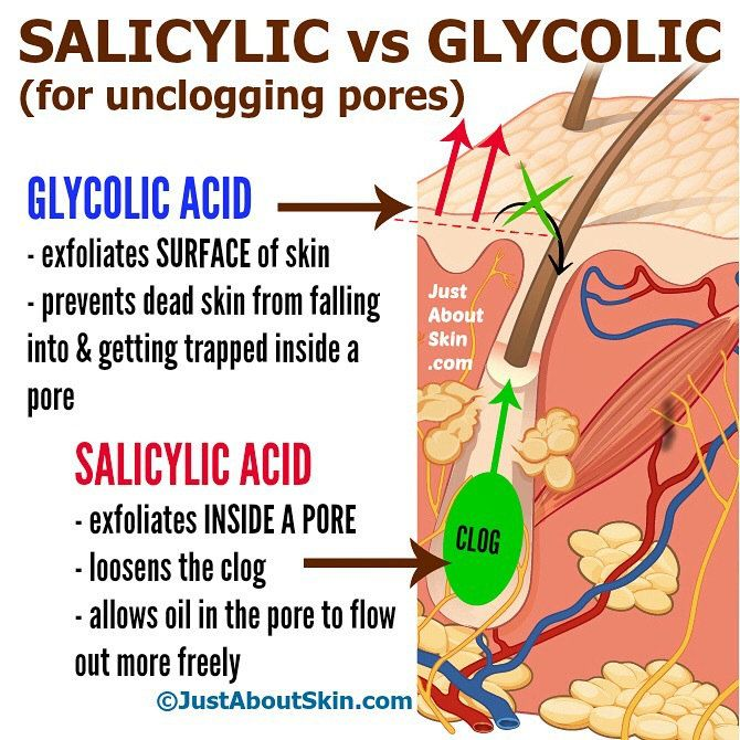 Salicylic acid vs Glycolic acid? Which one do you use if you have blackheads? Both are good for unclogging pores. Here's why: SALICYLIC ACID This is the only acid that can penetrate oil. (Because it is oil-soluble. All other acids are water soluble.) Thanks to this property, it can reach *inside* a pore and