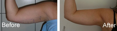 LipoLite Before and After Photos: Arms