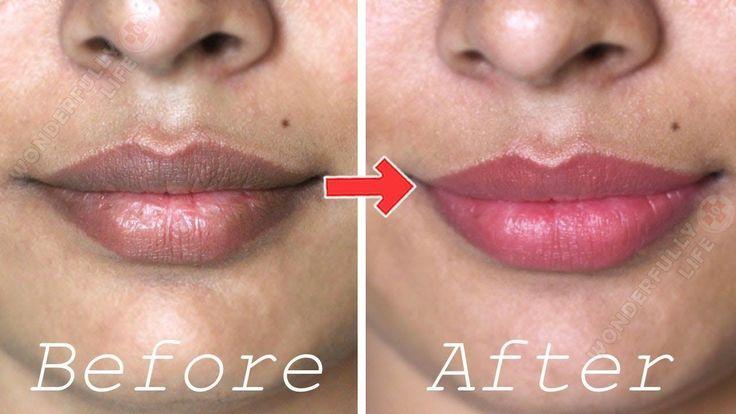 How to Get Pink Lips | Lighten Dark Lips Naturally at Home - YouTube #pinklipshowtoget #darkpinklips