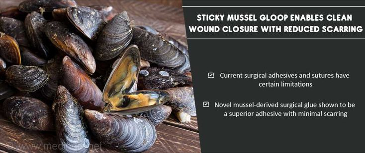 Innovative Surgical Glue With Reduced Scarring : Sticky Mussel Protein