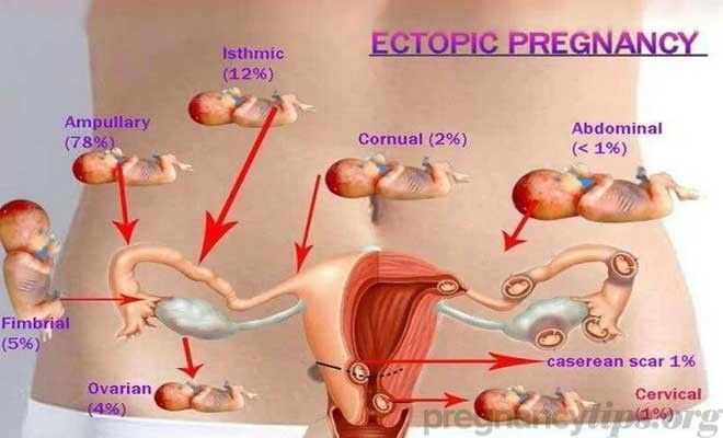 Ectopic Pregnancy Signs and Symptoms – Pregnancy Tips