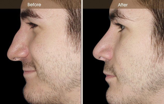 Pin by Robert Guida on Before and After: Rhinoplasty ...