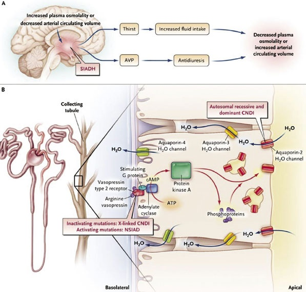plaquenil and neuropathy