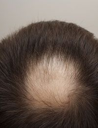 Who Discovered Male Pattern Baldness #hairlossexpert