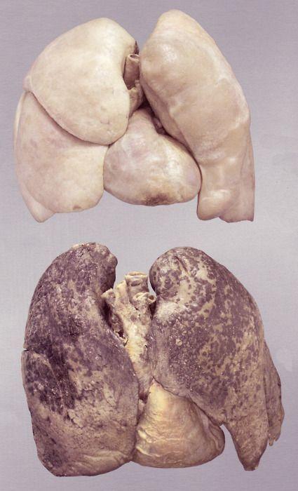 Pulmones sanos (arriba) vs. Pulmones de fumador (abajo)