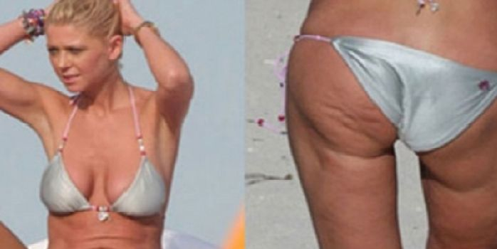 15 Celebs Who Surprisingly Battle Cellulite