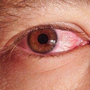 Secreción y ardor en los ojos.-Alergias, incluyendo las alergias estacionales (o fiebre del heno) Infecciones provocadas por bacterias o virus, incluso la gripe y los resfriados pueden provocar ojos llorosos, rojos e irritados. Irritantes químicos (como el cloro en una piscina o productos de maquillaje). Conjuntivitis o conjuntivitis aguda, tal como tenía Delfina, que es una inflamación o infección de la membrana que recubre los párpados, denominada conjuntiva, que se produce principalmente…