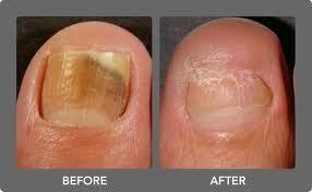 Nail fungus removal: