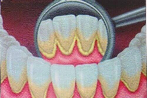 Plak diş minesinde ve diş etlerinde birikip sertleşen sarı yapışkan bakteridir, ağzınızda hoş olmayan bir görüntü yaratabilir.