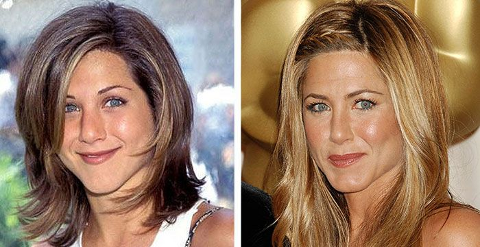 Best Celebrity Plastic Surgeries  You never knew these celebs had work done.