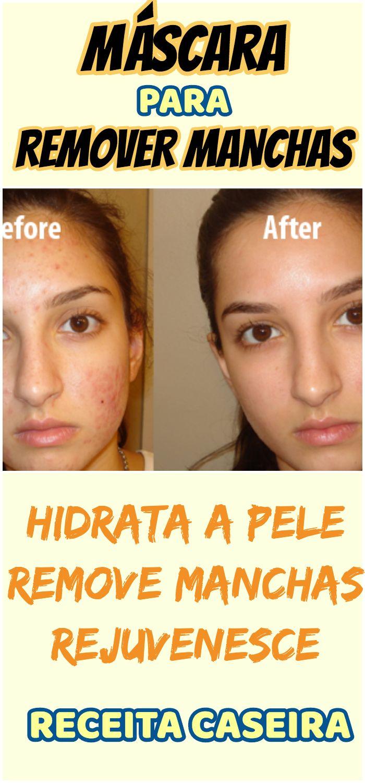 Mascara Para Remover Manchas E Combater A Acne Com Imagens