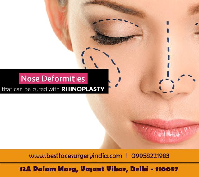 Best Face Surgery India: Do You Know All About Rhinoplasty Surgery?