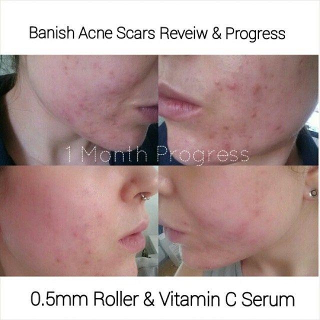 Vitamin c serum for acne scars