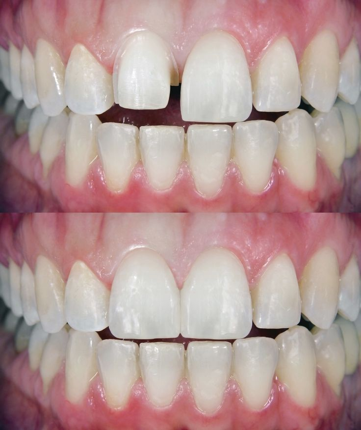 Regular trips to southwest dental locations are important to your overall health. For More Information Visit http://marquettedentistry.com/southwest-dentist-houston-tx/