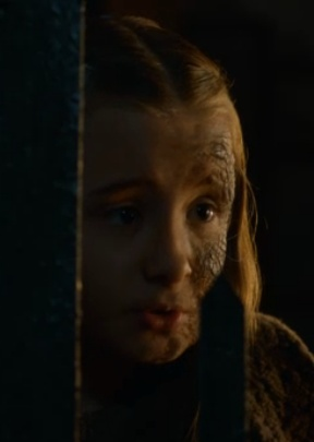 Little Shireen (Selyse and Stannis' daughter) has a terrible disease, which has left half her face a crunchy grey.