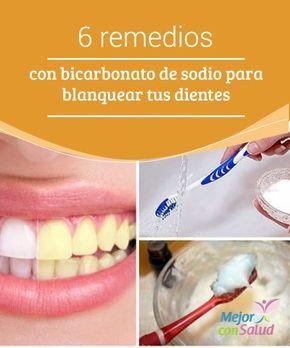 6 remedios con bicarbonato de sodio para blanquear tus dientes   El bicarbonato de sodio tiene compuestos aclaradores que nos ayudan a blanquear los dientes de forma natural. Te compartimos 6 formas de utilizarlo.