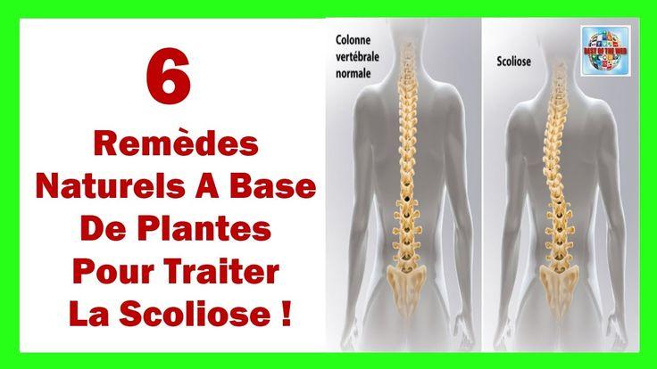 Voici 6 Remèdes Naturels A Base De Plantes Pour Traiter La Scoliose
