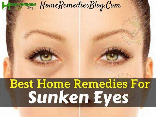 10 Best Home Remedies To Get Rid Of Sunken Eyes | Dry eyes ...
