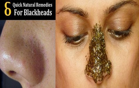 6 Easy Natural Ways to Get Rid of Blackheads -  Blackheads can vastly disrupt our look since it often appears right on our nose and cheeks. For starters, blackheads are accumulated pollutants and dead skin in our pores. The trapped oil oxidizes and turns black forming the black dots you see. Fortunately, there are natural and easy ways to get...