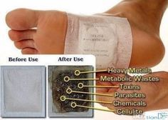 Detox Foot Pads: What Are Those and How To Make Them?