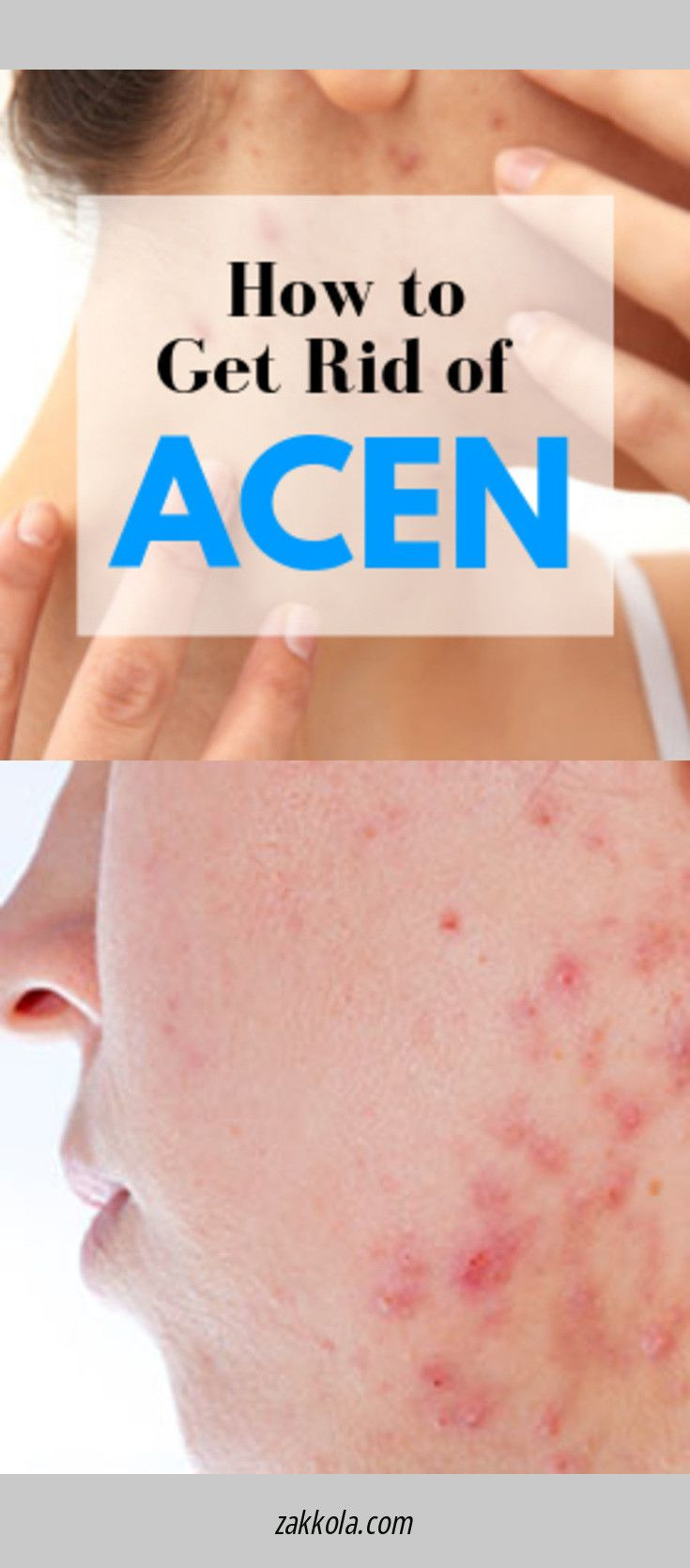 Read more about acne. Please click here to read m…