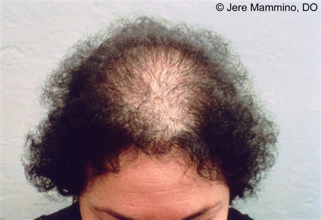 Male Pattern Hair Loss In Females Natural Treatment