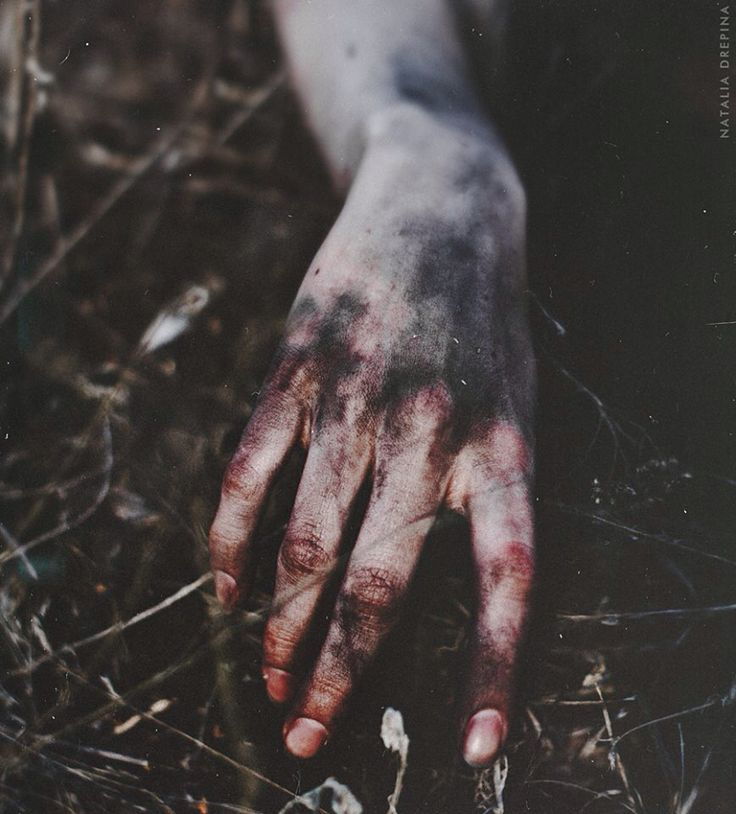 white skin. purple bruises. deep red blood.