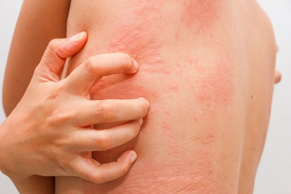 Poison Ivy Rash What Are The Symptoms And How To Treat It At