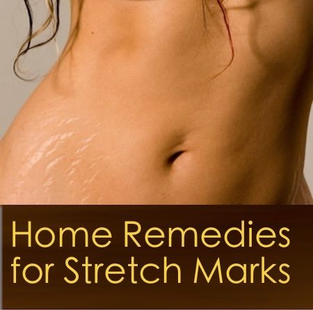 Natural Remedies to Cure Stretch Marks
