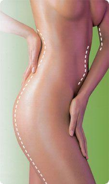 Zábaly - Medical Institut: nabízí hubnoucí zábal s bleskovým účinkem 4 v 1. Jedná se o zeštíhlující zábal zaměřený na lokální spalování tuků, odstranění celulitidy, zpevnění kůže a odplavení toxických látek z podkoží. Tato zeštíhlovací metoda je založena na vlivu tepla a chladu, podobně jako v případě Kneippovy kúry.